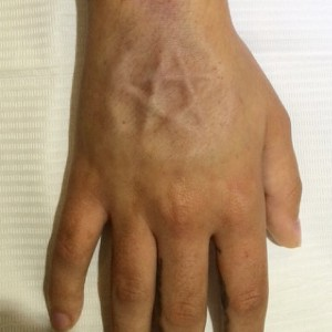 2-implants-1-300x300