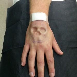 3-implants-2-300x300
